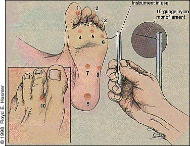 Diabetes foot care test answers