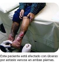 Tratamiento de las úlceras de la pierna por estasis venosa